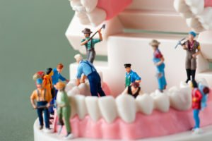 5 Ways To Keep Your Dentist From Ripping You Off