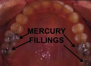 Dental Mercury Fillings