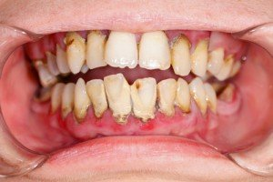 Dental plaque- the Good, the Bad, the Ugly
