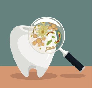 Dental Plaque Is Healthy Until It's Not