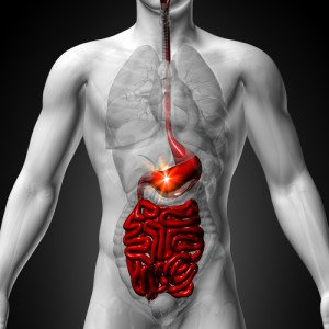 Gut Problems and Gum Problems