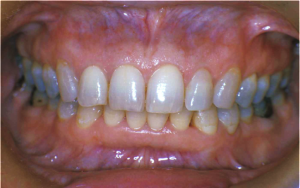 Healthy Mouth 83 Female