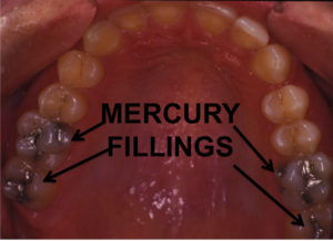Dental Mercury Fillings