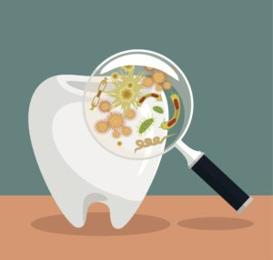 gum disease: when bad bugs revolt
